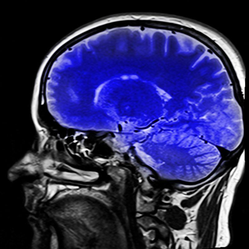 Alteraciones conductuales en Daño Cerebral Sobrevenido: la importancia de una Rehabilitación integral