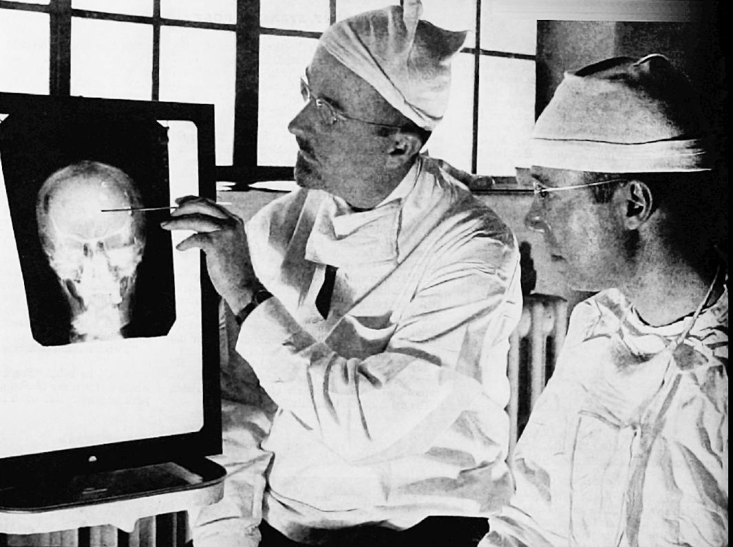 Casos clínicos más destacados en la Historia de la Neurociencia