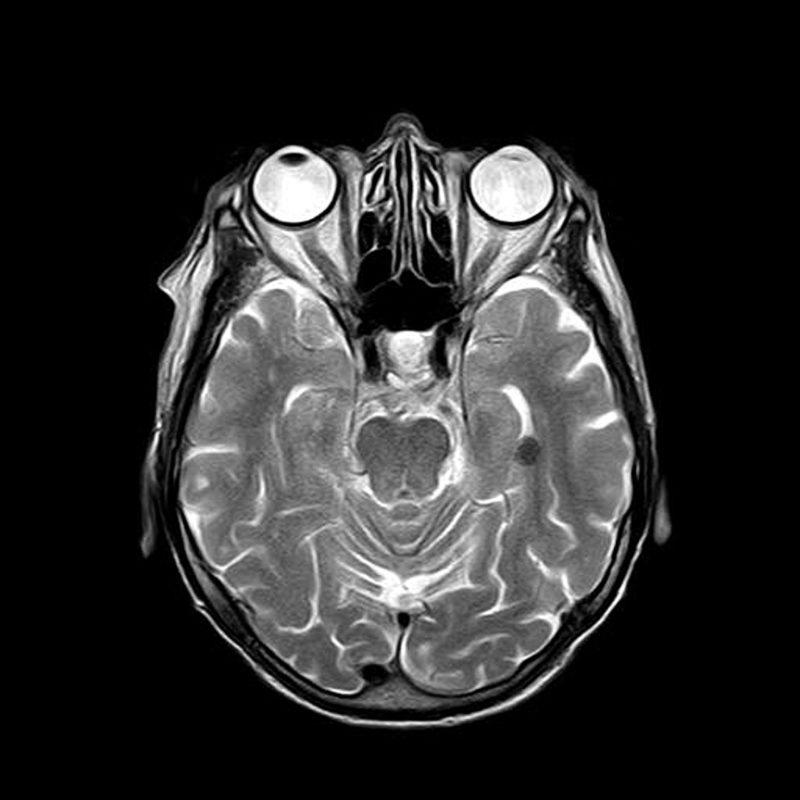 Rehabilitación Neuropsicológica en TCE: recomendaciones generales