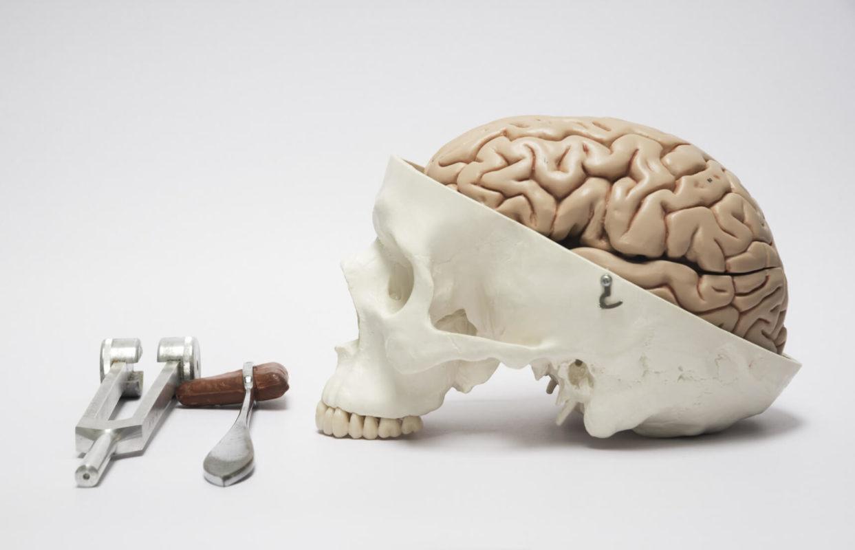 psicocirugía